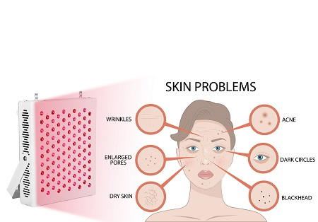 660nm red light therapy lights benefits
